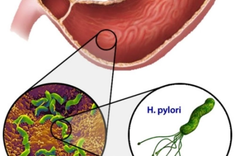 Helicobacter Pylori ve Fonksiyonel Tıp Tedavisi